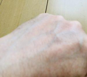 チャップアップを手の甲に塗布して30分後の状態