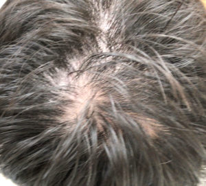 チャップアップ使用前の頭頂部
