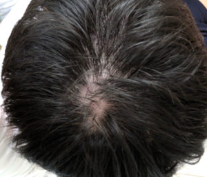チャップアップを6ヶ月使用した頭頂部